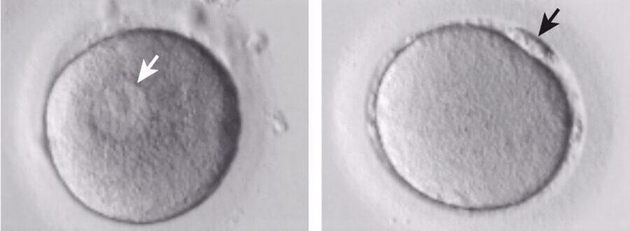 El envejecimiento de la mujer afecta a la etapa crítica final de la maduración de los óvulos